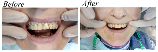 Cheap veneers before and after - Overseas Medical Ukraine photo