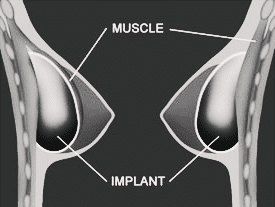 Breast Augmentation (how it works) - Overseas Medical in Ukraine
